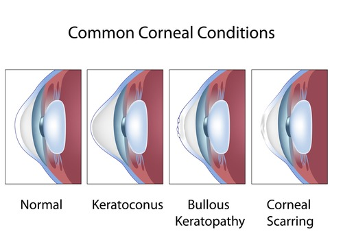 Common Corneal Conditions