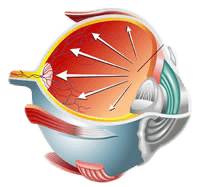 Glaucoma Treatment Diagram