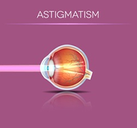 Astigmatism Correction Diagram